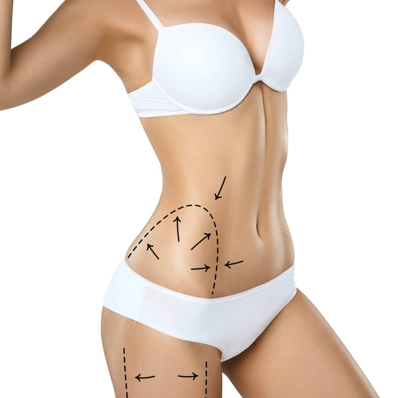 Woman torso in underwear with medical marks for plastic surgery or liposuction